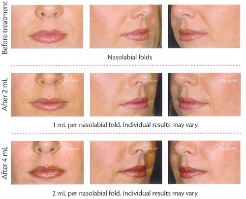 different lip fillers